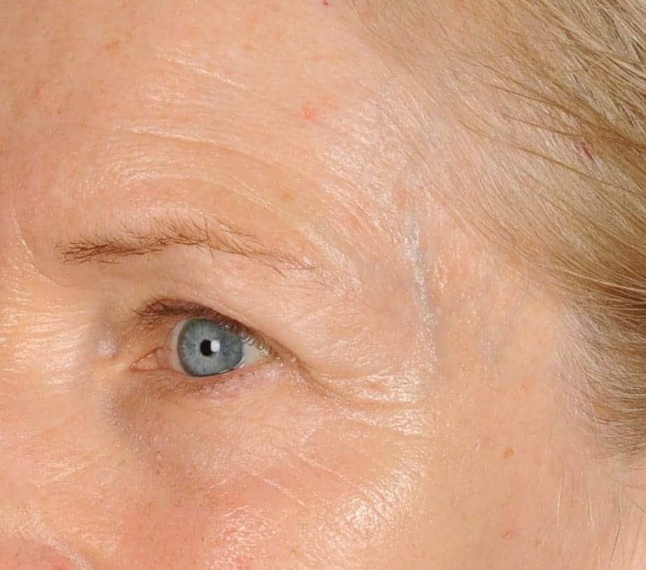 Nancy after lefteye 8 days