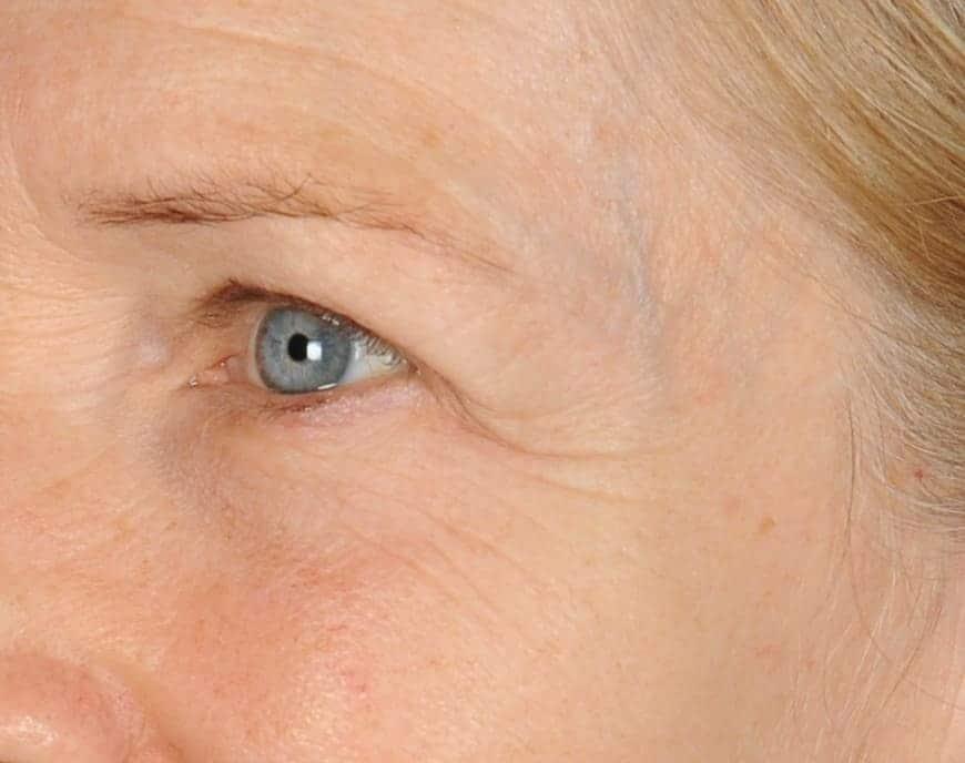 Nancy before lefteye