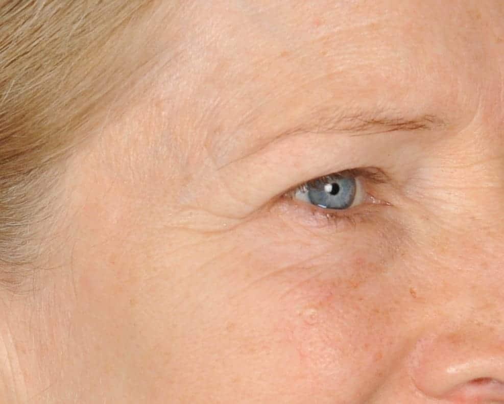 Nancy before righteye