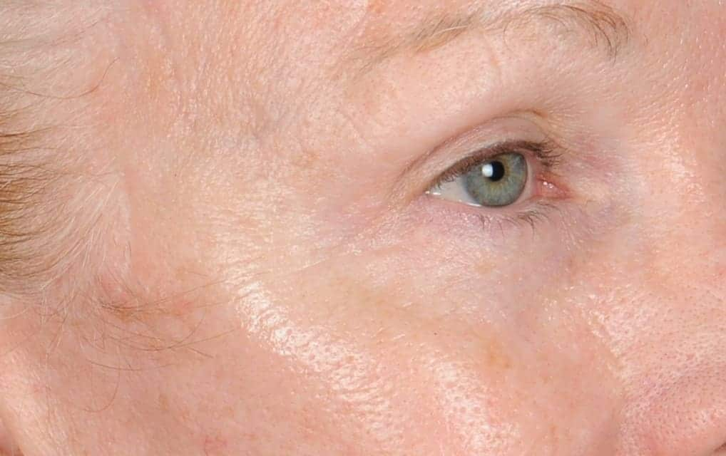 Vicki after right eye 8 days