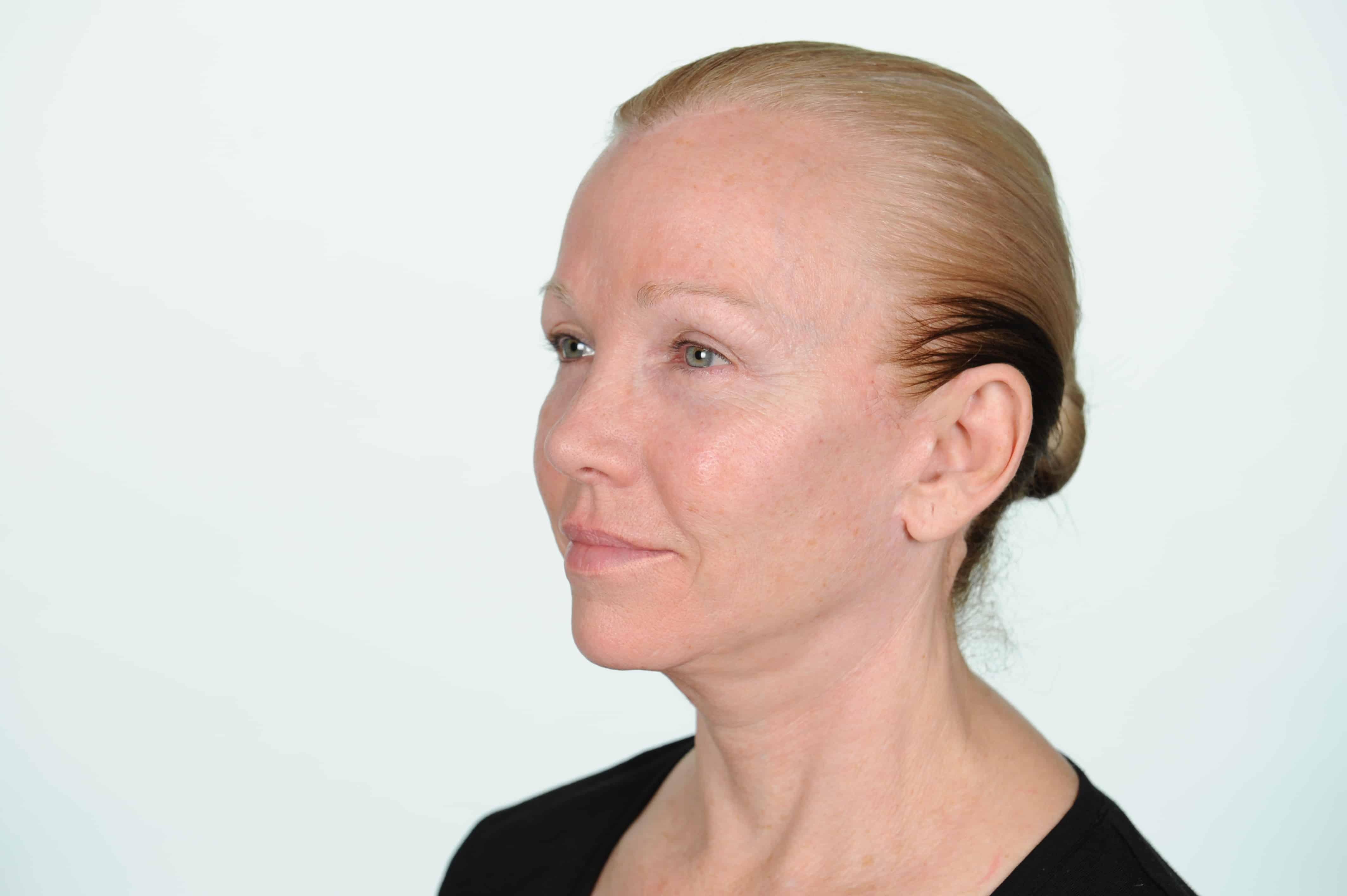 Vicki before leftside