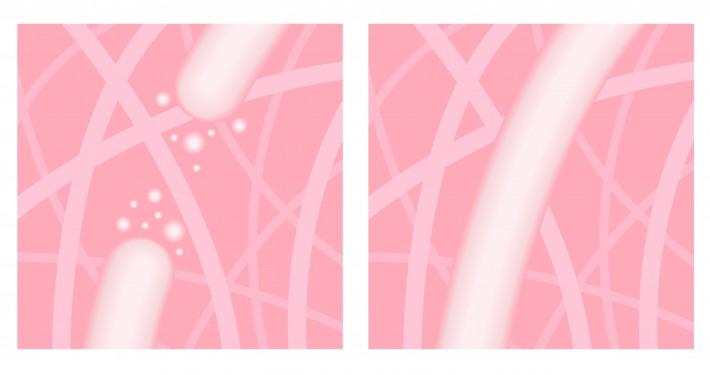 Collagen and Elastin breakdown